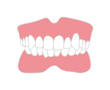 八重歯を治したい方