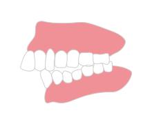出っ歯を治したい方