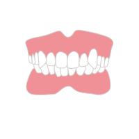 八重歯を治したい