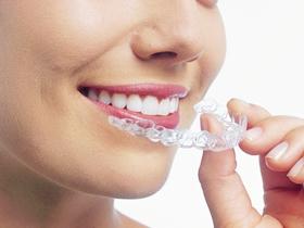 インビザラインマウスピース型 カスタムメイド矯正歯科装置(製 品名:インビザライン 完成物薬機法対象外)を当院が推奨する理由